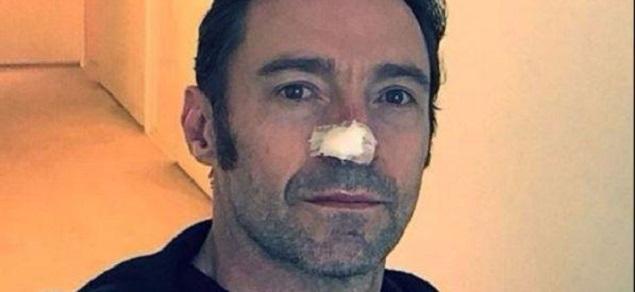 Hugh Jackman, otra operación por el cáncer de piel: ''Estoy bien, cuidado con el sol!''